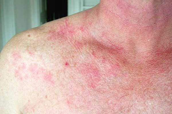 fungus on skin