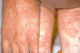 Black Mold Symptoms In Humans Treatment