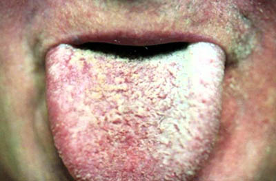 effects of black mold on human body