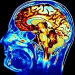 Effects of Mold On The Brain